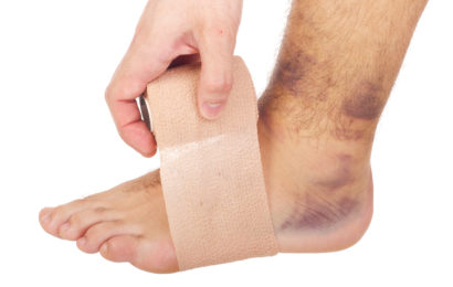 Top 5 Effective Essential Oils For Bruises