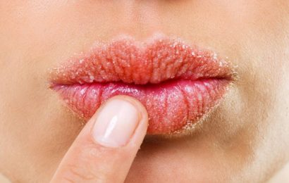 treatments to fix dried lips